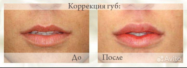 ukol-botoksa-v-klitor