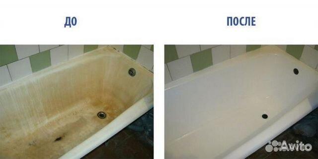 Реставрация ванны уфа цена